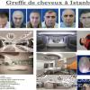 Greffes De Cheveux En Tunisie, Turquie, France