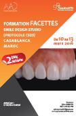 FORMATION FACETTES SMILE DESIGN STUDIO (PROTOCOLE CSDS)