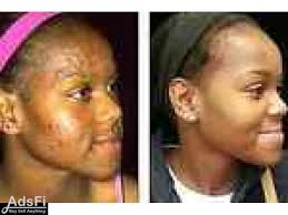 THE BEAUTY SHOP FOR THE BEST SKIN CARE PRODUCTS +27625629073